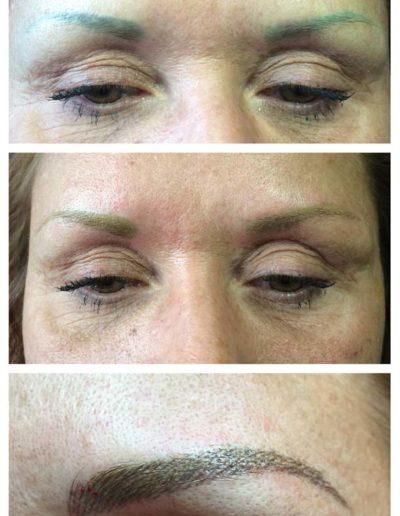 02-Korrektur-einer-Verzeichnung-Augenbrauen-durch-Permanent-Make-up-Spezialistin-Birgit-Schneider