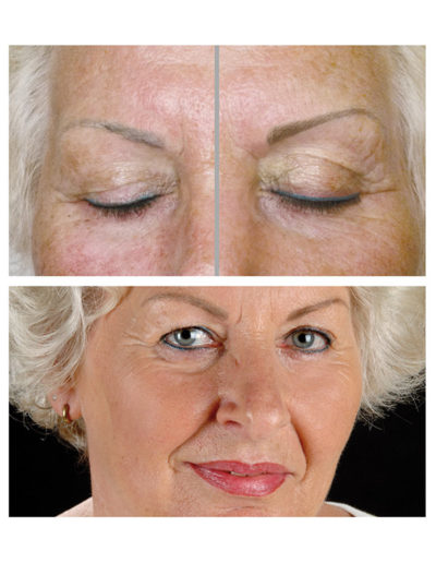 Auffrischungen-von-Permanent-Make-up-Augenbrauen-und-Liddstichen