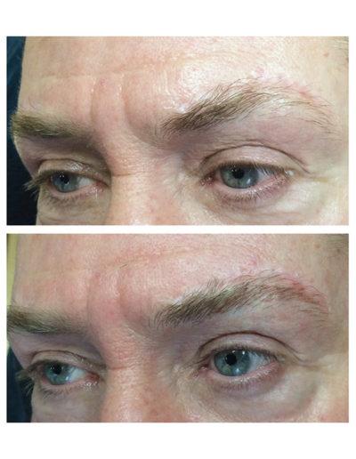 Augenbrauenergänzung-Mann