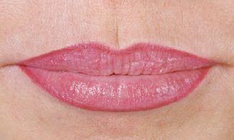 Lippenkonturierung