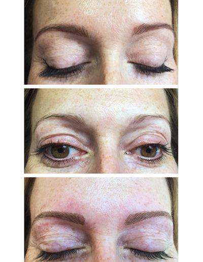 Neugestalltung-der-Augenbrauen
