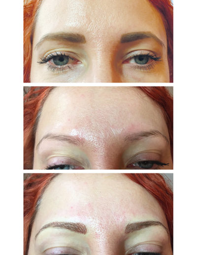 Neugestaltung-der--Brauen-bei-einer-rötlichen-Haarfarbe