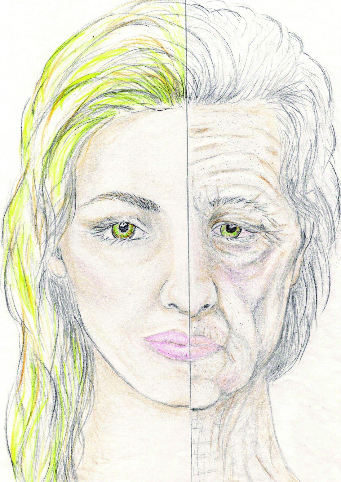 altersbedingte Erscheinungen