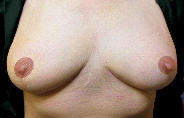 vorhandenen Brustwarze zur Mamillenmitte