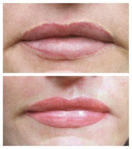 2-Korrektur-einer-fleckigen-Verzeichnung-der-Lippen-durch-professionelles-Permanent-Make-up-Fachpraxis-in-Glashütten-Oberems_1100x1146