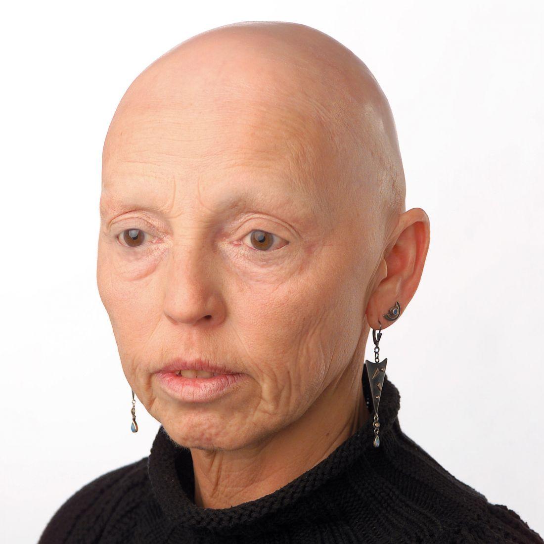 Haarlosigkeit nach Chemotherapie