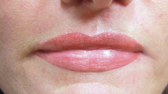 Lippenvollzeichnung