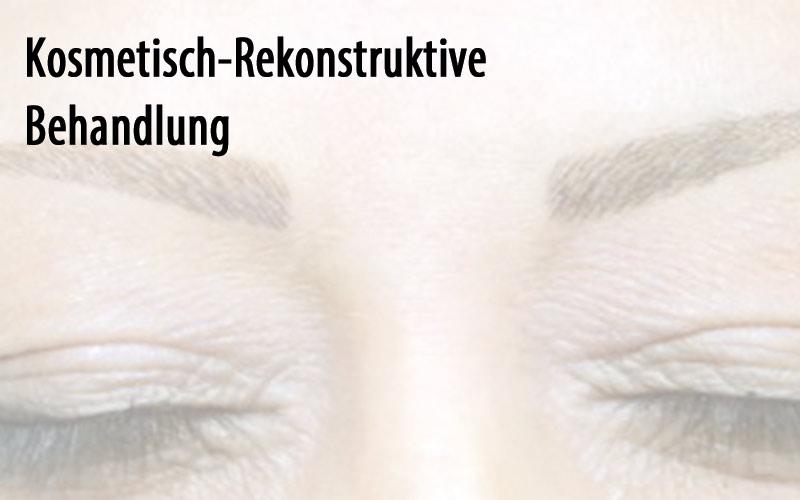 Kosmetisch-Rekonstruktive Behandlung