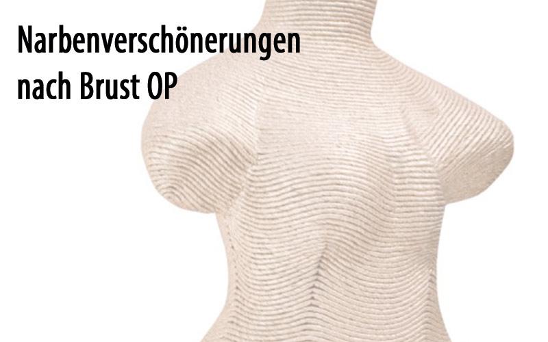 Narbenverschoenerungen nach Brust OP