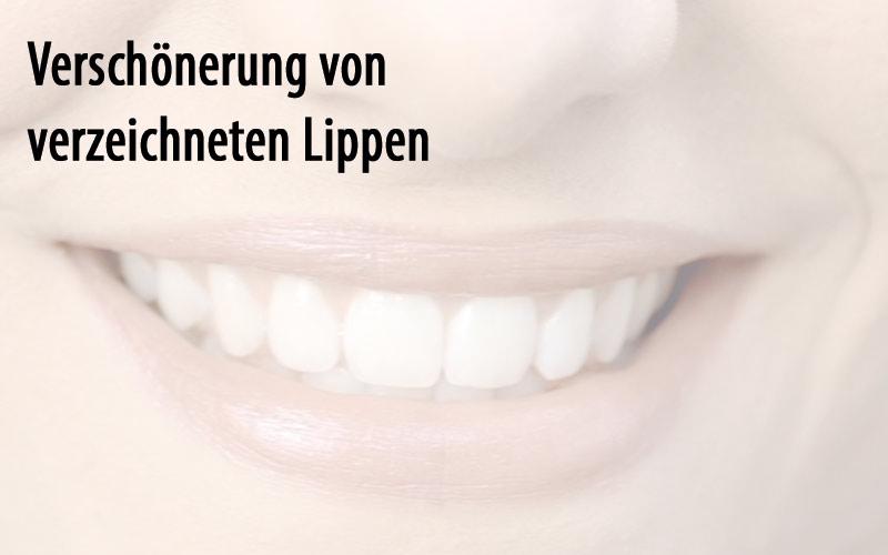 Verschönerung von verzeichneten Lippen