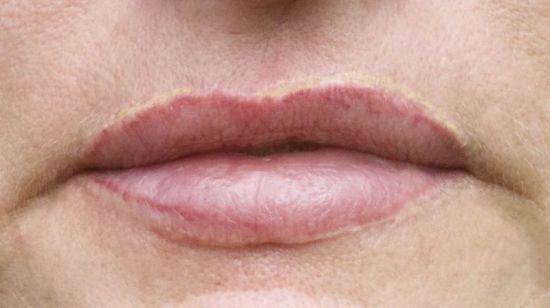 Narben rund um die Lippen