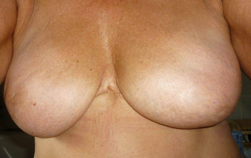 beide Brüste amputiert