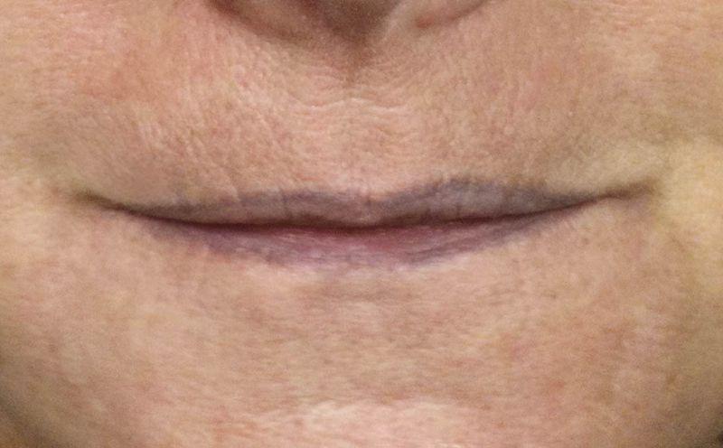 schmale Lippen