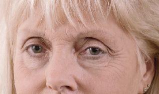 Augenbrauenneugestaltung